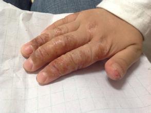 怎样治疗儿童银屑病才有效