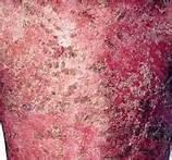 红皮型银屑病会带来哪些症状表现