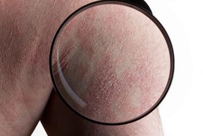牛皮癣与玫瑰糠疹的鉴别