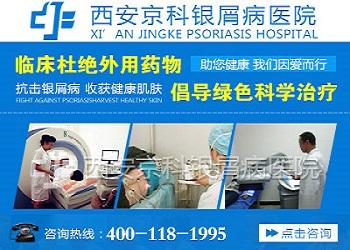 西安莲湖银屑病医院是私立的吗