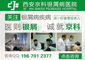 西安莲湖银屑病医院是私立还是公立
