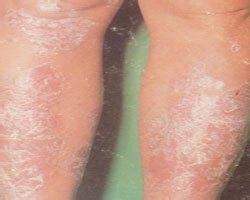 牛皮癣有哪些治疗方法