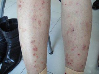 牛皮癣对女性患者造成哪些危害