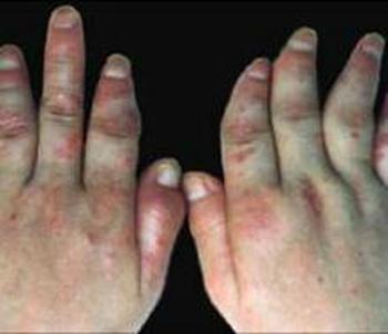 手部患有牛皮癣的患者要怎么护理